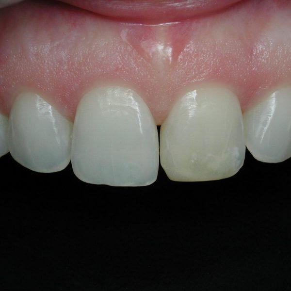 Intra-Oral_06-07-05