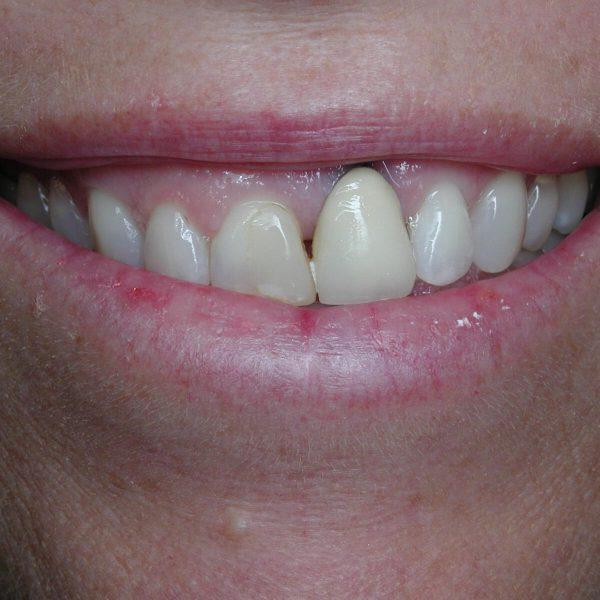 Intra-Oral_11-02-04